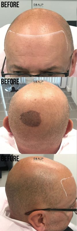 before scalp micropigmentation at scalpmates in birmingham uk