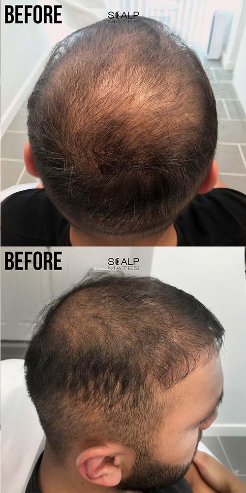 before scalp micropigmentation in birmingham UK for hair density
