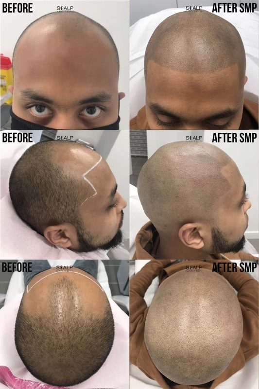 before and after Scap micropigmentation smp for male pattern baldness, bald head tattoo for man