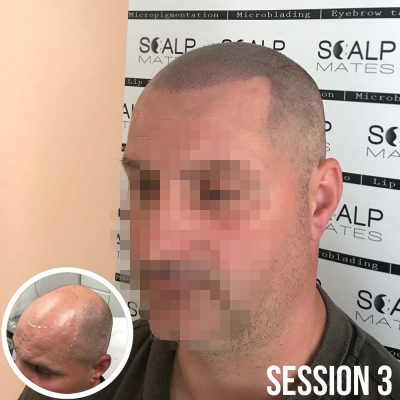 best hairline tattoo in birmingham UK, scalp micropigmentation smp scalpmates