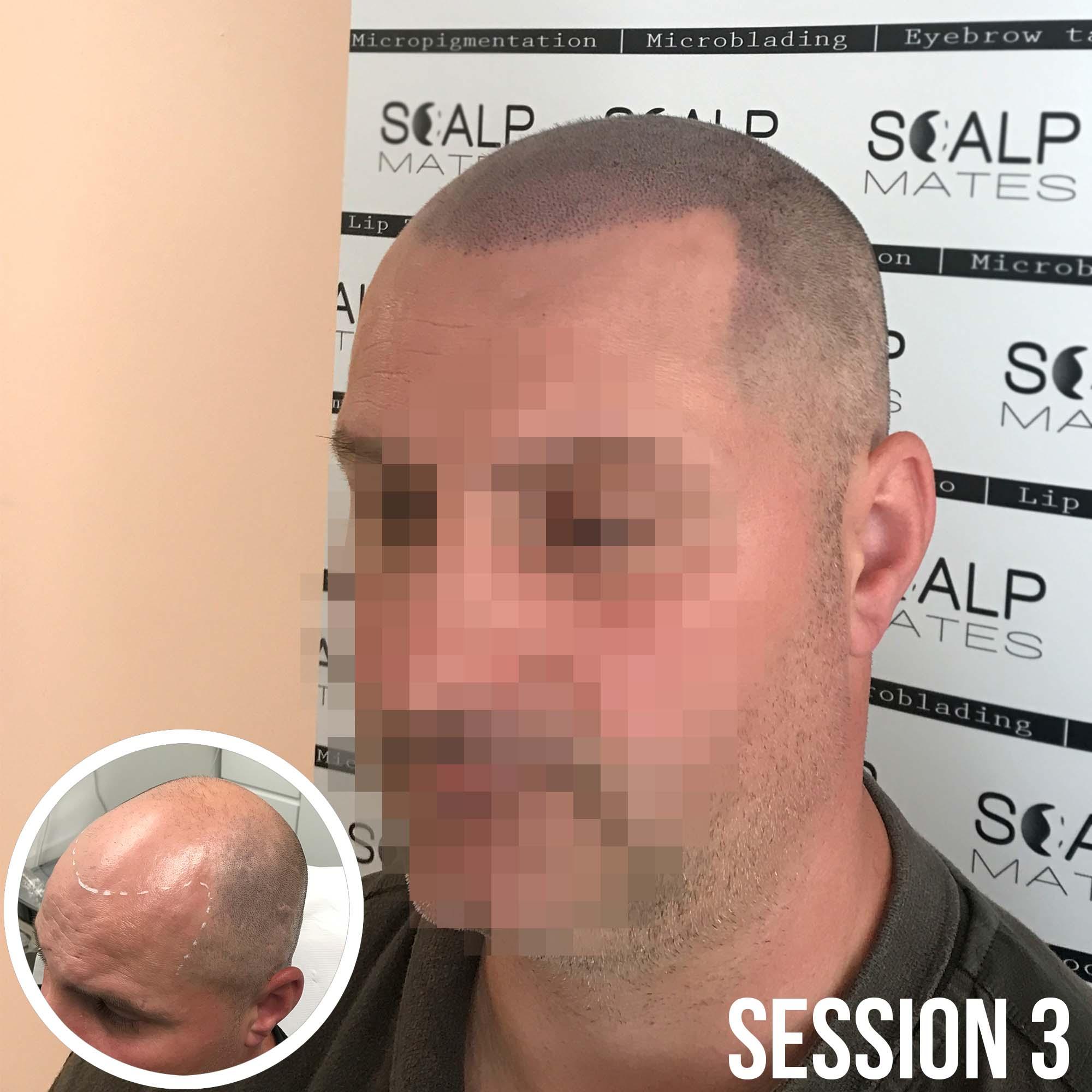 final result hairline tattoo on bald head at ScalpMates, Birmingham UK