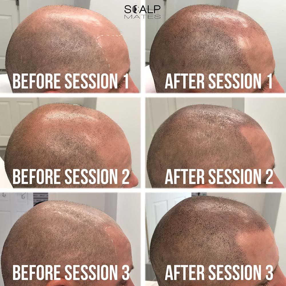 full scalp micropigmentation smp process bald hair tattoo birmingham uk