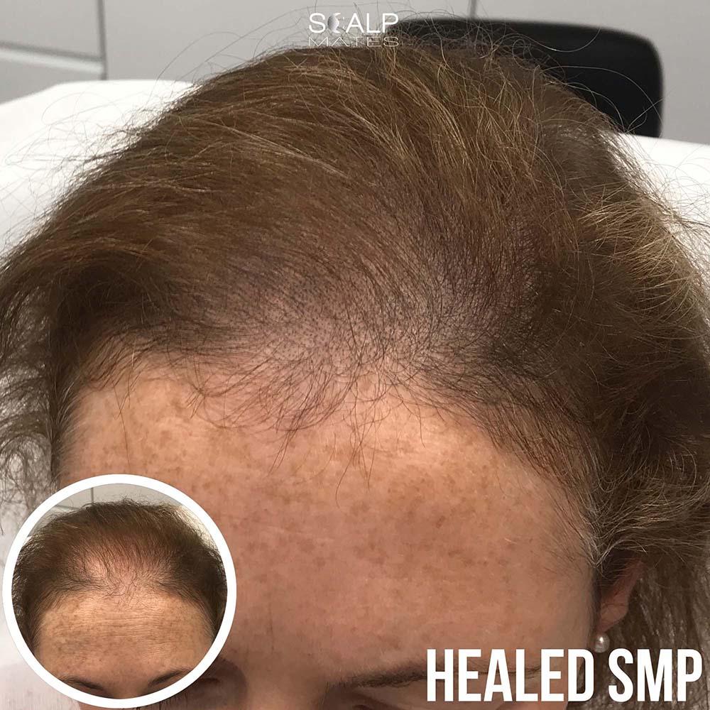scalp micropigmentation in birmingham uk for female long hair smp