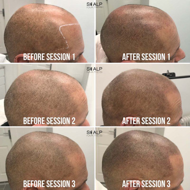 Before and after scalp micropigmentation for short trimmed shaved hair, hairline tattoo process in birmingham uk at scalpmates
