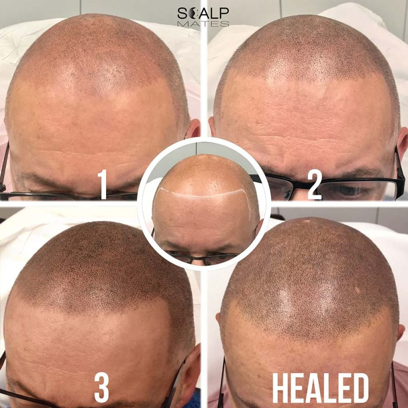 Scalp Micropigmentation SMP process for bald head tattoo in Birmingham UK