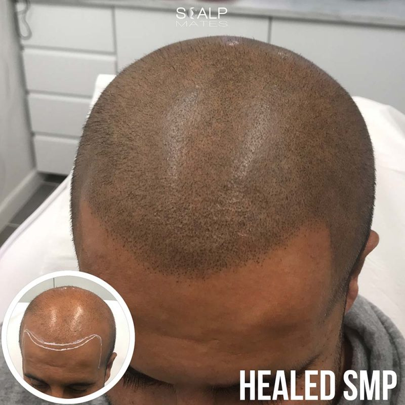 Scalp micropigmentation in birmingham healed smp hair tattoo