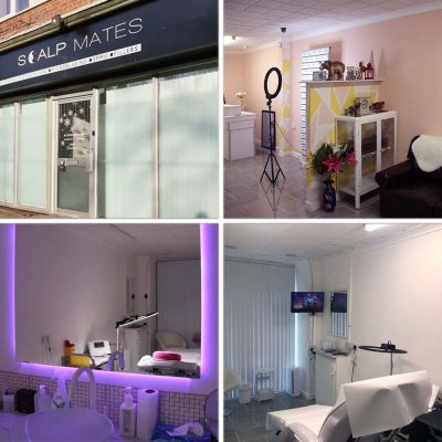 Scalpmates clinic in Birmingham UK