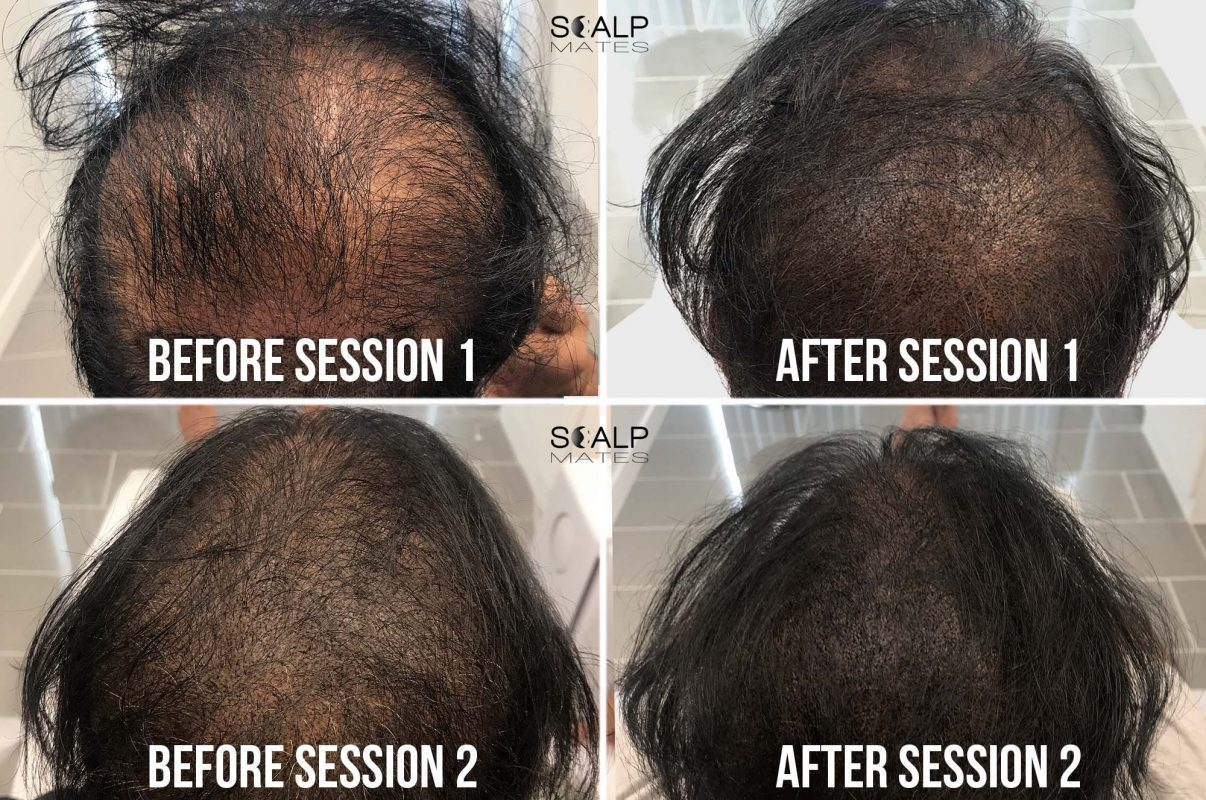before and after 2 SMP for long hair Scalp micropigmentation for hair density at scalpmates birmingham uk