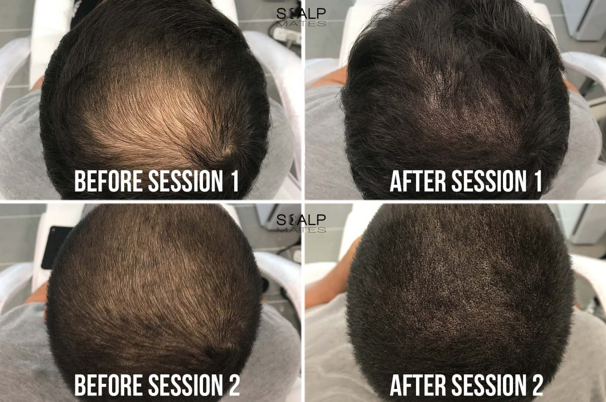 before and after 2 SMP for thinning crown Scalp micropigmentation for hair density at scalpmates birmingham uk