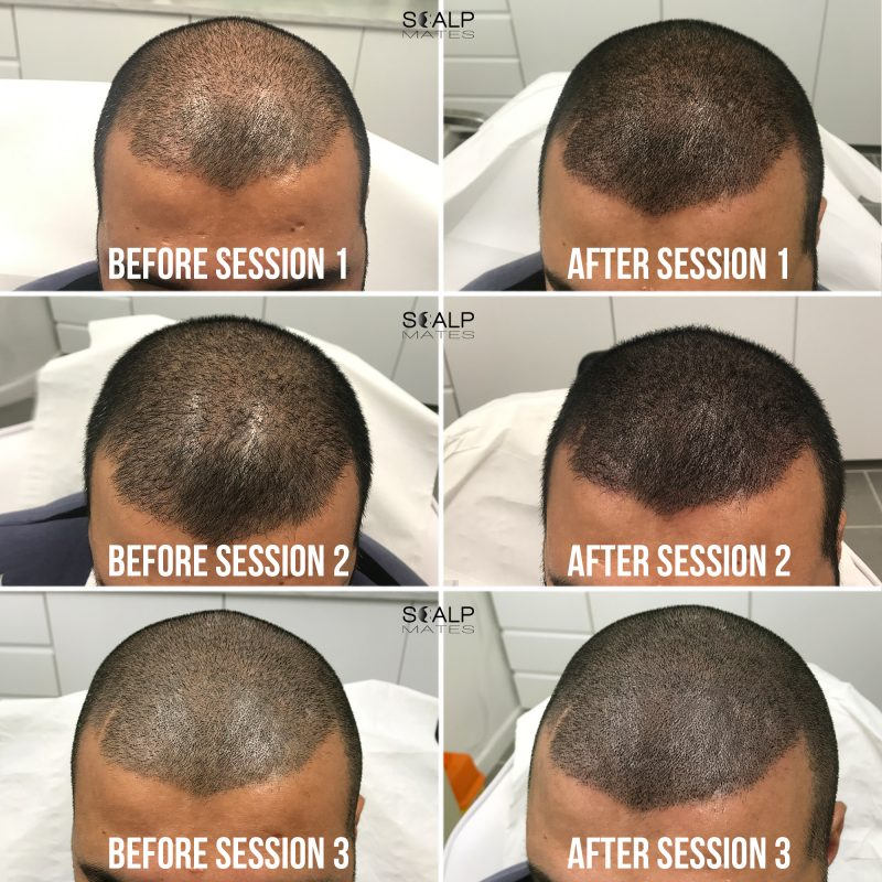 before and after SMP for crown Scalp micropigmentation for hair density at scalpmates birmingham uk