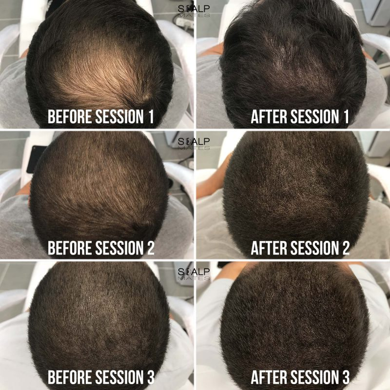 before and after SMP for thinning crown Scalp micropigmentation for hair density at scalpmates birmingham uk