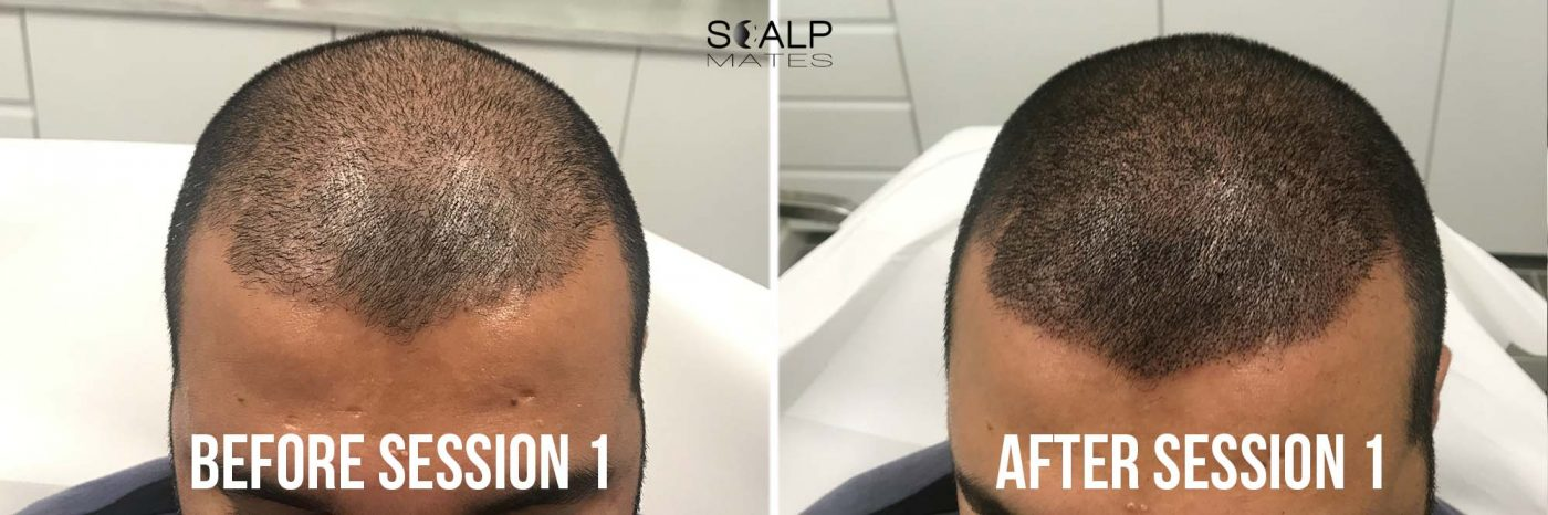 before and after first session SMP for crown Scalp micropigmentation for hair density at scalpmates birmingham uk