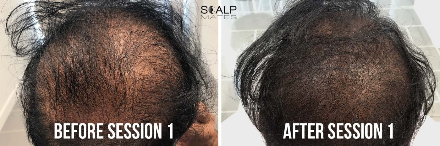 before and after first session SMP for long hair at scalpmates birmingham uk