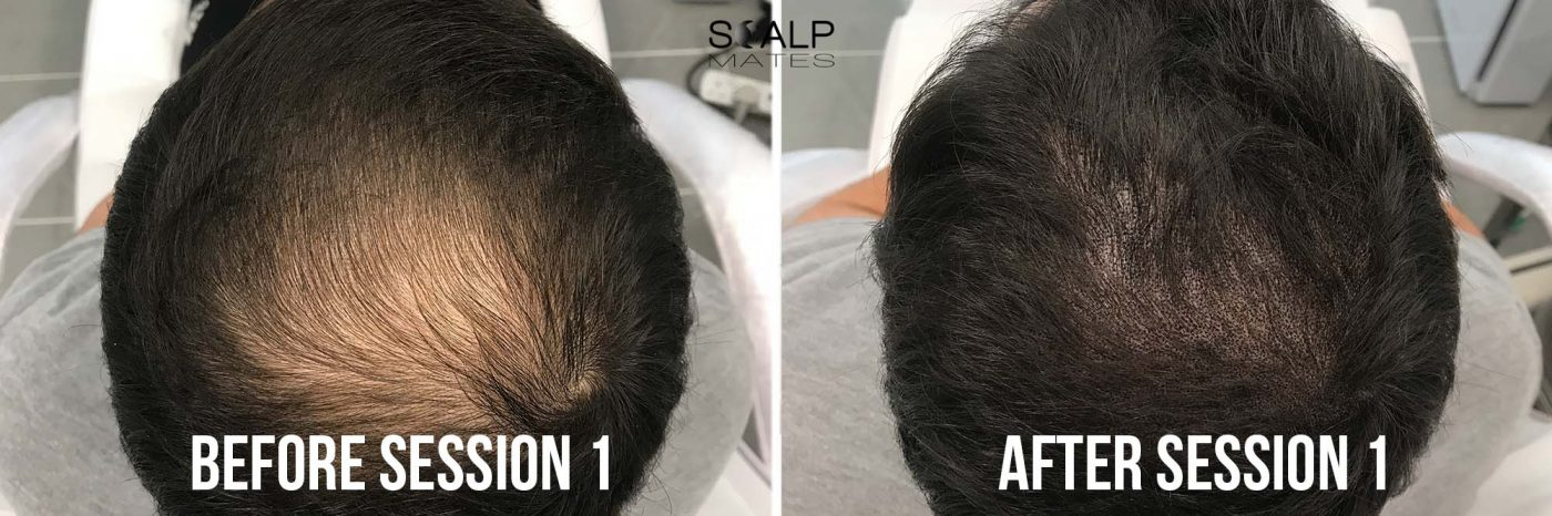 before and after one session SMP for crown Scalp micropigmentation on long hair at scalpmates birmingham uk
