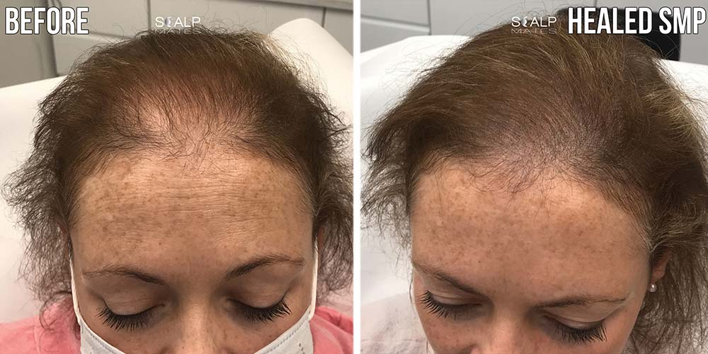 before and after scalp micropigmentation for female long blonde hair in birmingham uk scalpmates