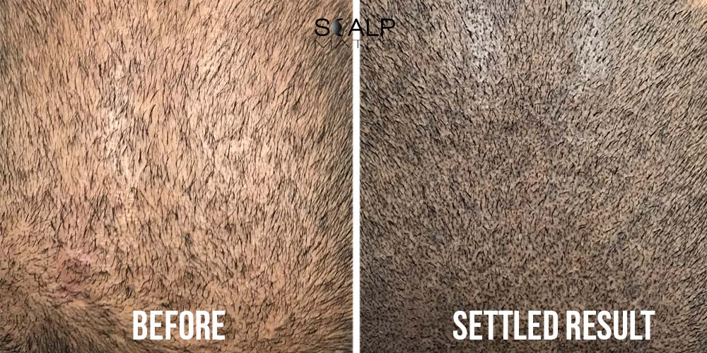 before and after scalp micropigmentation for long hair to add hair density birmingham