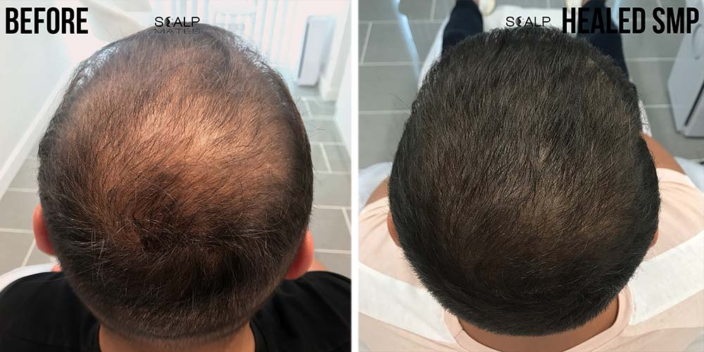 before and after scalp micropigmentation for male muslim long hair in birmingham uk scalpmates