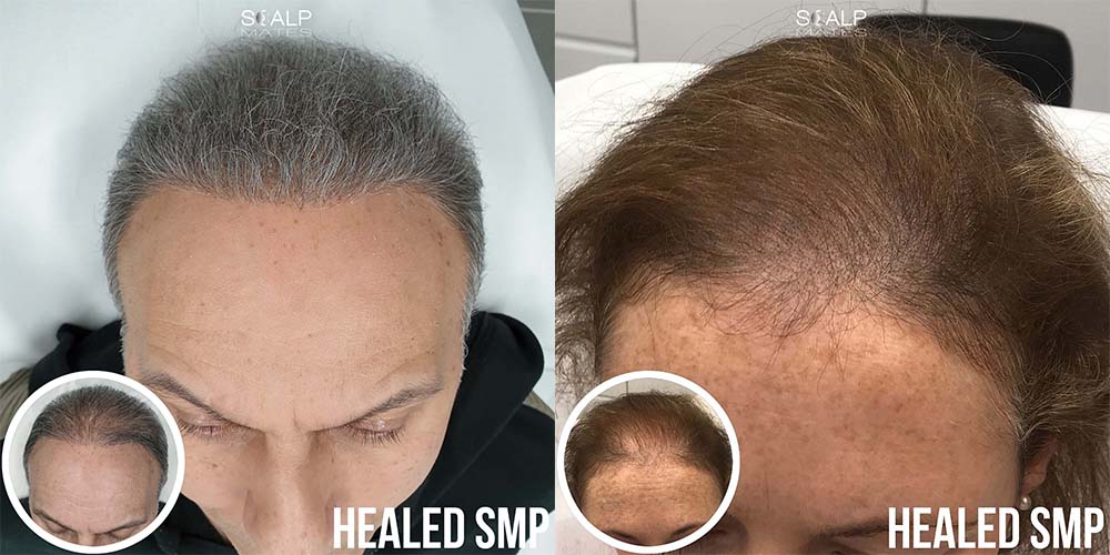 smp for long hair scalp micropigmentation for grey light hair birmingham uk