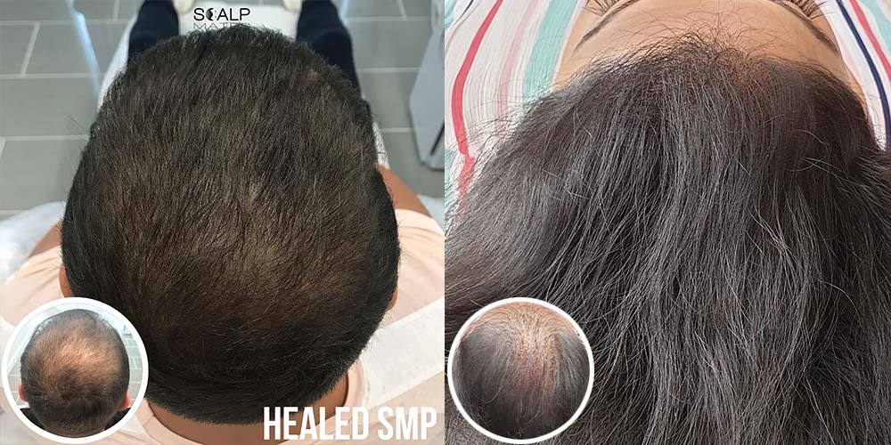 scalp micropigmentation for long hair birmingham uk smp for male and female
