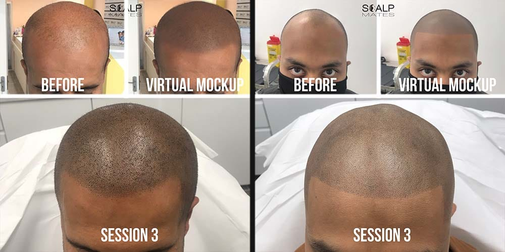 hairline tattoo in bimringham uk scalpmates, Scalp micropigmentation virtual mockup smp