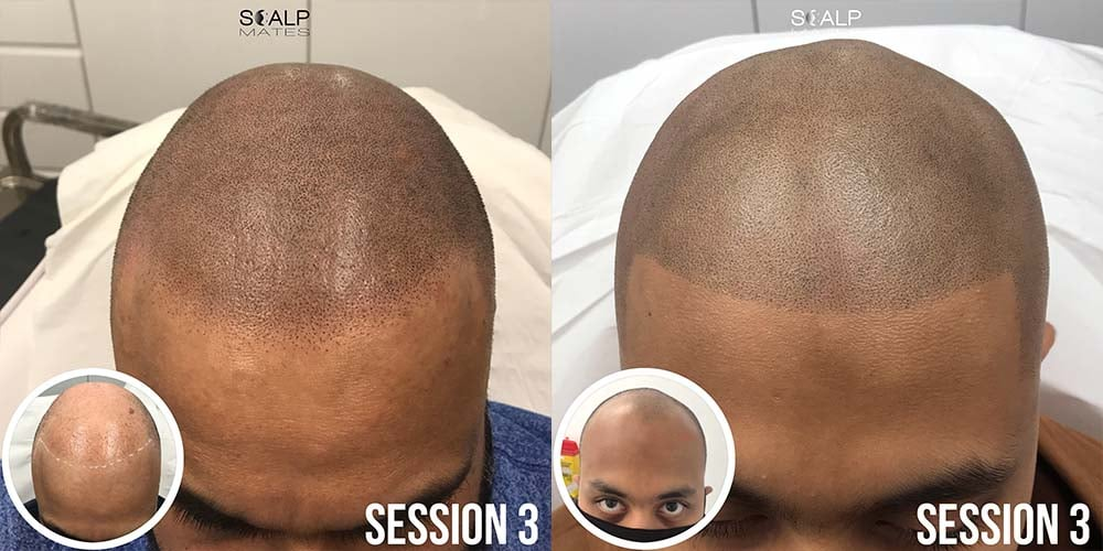 hairline tattoo in bimringham uk scalpmates, different hairline styles for smp pigmentation