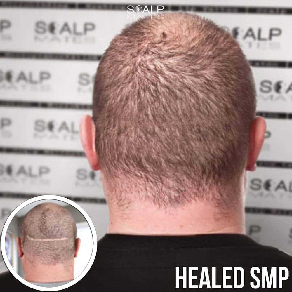 healed Scalp micropigmentation scar camouflage fix in Birmingham UK at scalp mates clinic