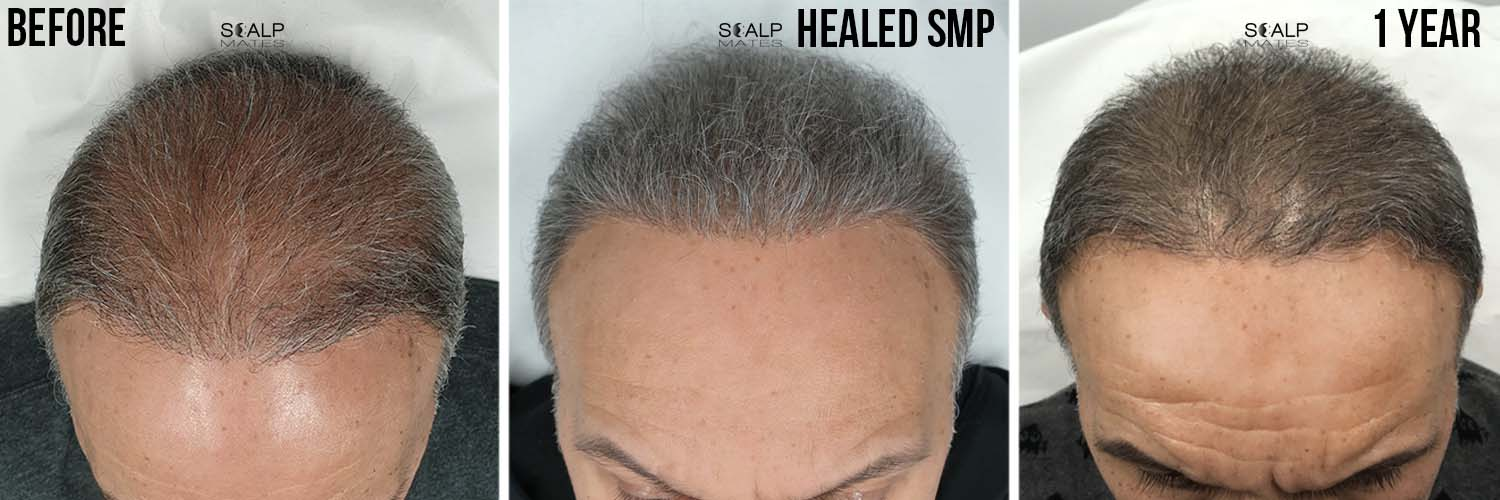healed scalp micropigmentation after 1 year result for long grey hair in birmingham uk at scalpmates