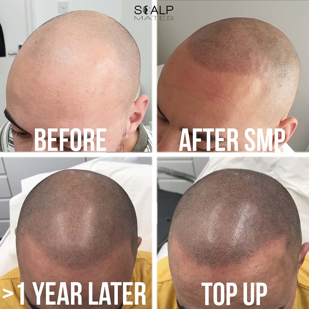 healed smp, hair line tattoo in bimringham healed scalp micropigmentation result scalpmates