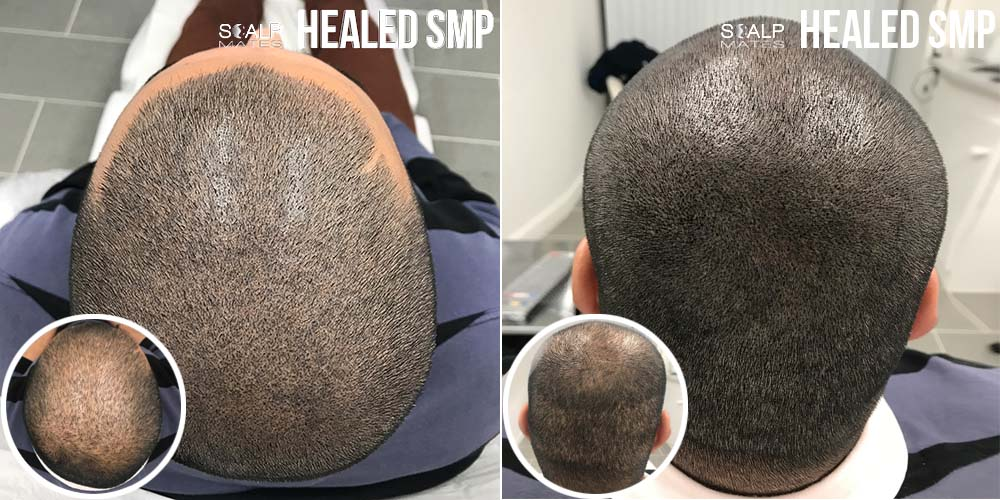 before and after smp for hair transplant scars and top of the head hair tattoo in birmingham uk for density scalpmates